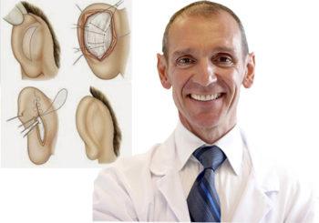 operacion-orejas-otoplastia-pais-vasco